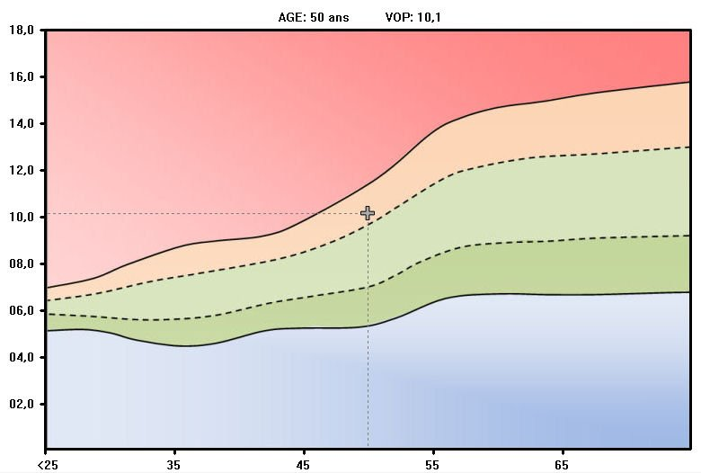 grafico-de-referencia-complior-analyse